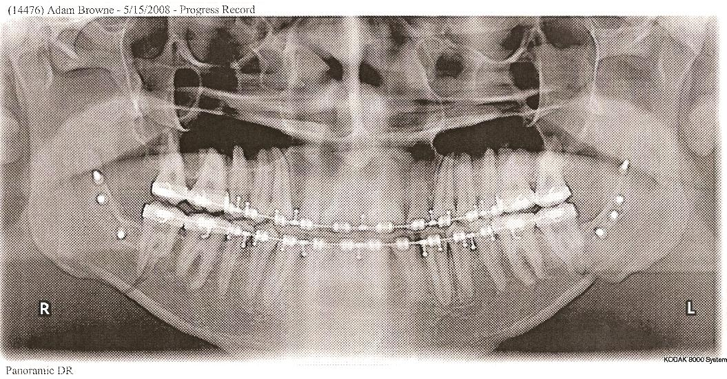The Cost of Corrective Jaw Surgery Underbite Before and After
