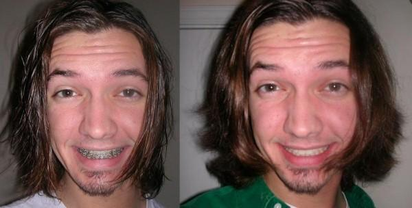 The Before with Braces and After with Lower Jaw Surgery