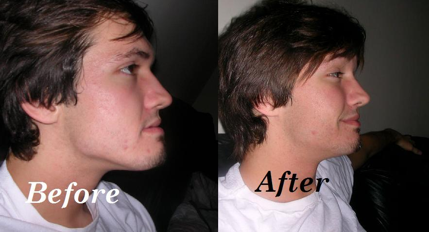 The Cost of Before and After Lower Jaw Surgery